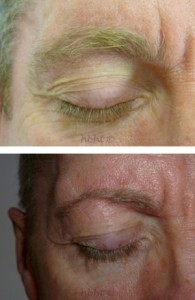Men-Eye-treatment-1-300x225